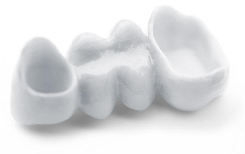 Dental Bridge, Kalama Family Dental, Cynthia Lehnertz, DMD