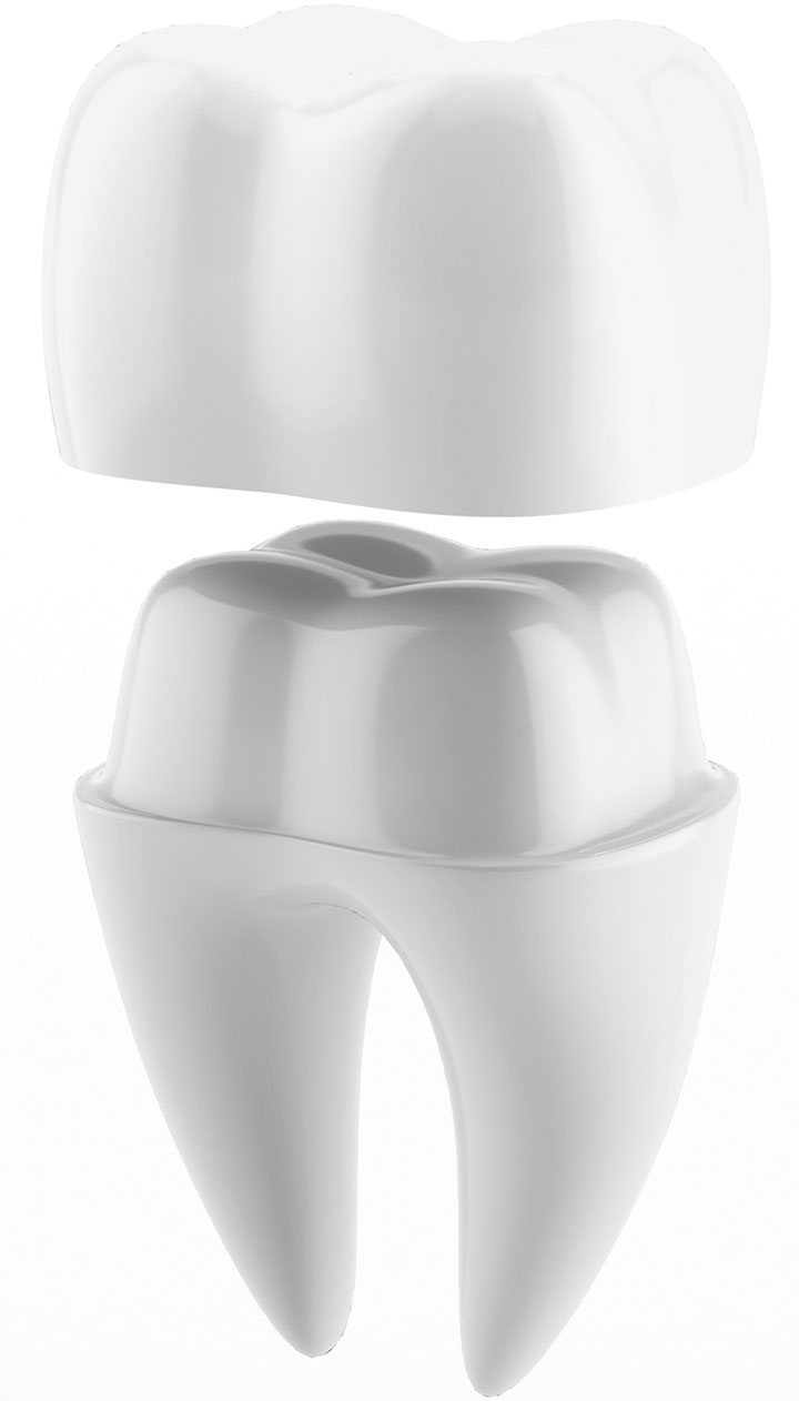 Dental Crowns, Kalama Family Dental, Cynthia Lehnertz, DMD